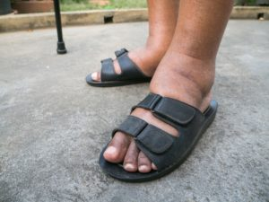 112115360-Prot-Tachapanit-Dreamstime- INP diabetes voeten pijnstillende crèmes