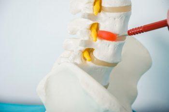 63777148-Carmen-Vicedo-Giner-Dreamstime-INP-Instituut-voor-Neuropathische-Pijn zenuwblokkade hernia pea
