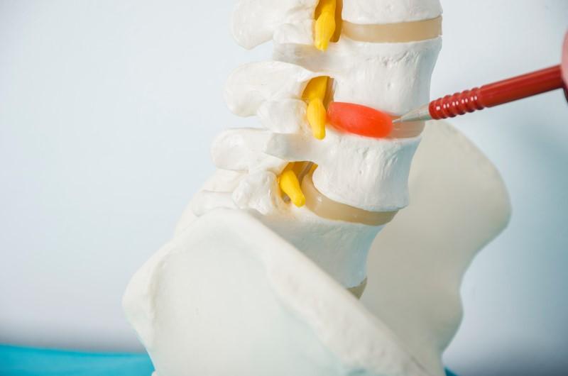 63777148-Carmen-Vicedo-Giner-Dreamstime-INP-Instituut-voor-Neuropathische-Pijn zenuwblokkade hernia