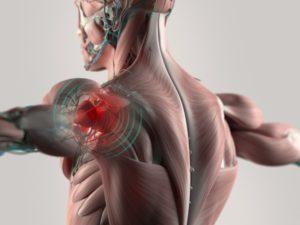 67626966-Chrischrisw-Dreamstime-INP-Instituut-voor-Neuropathische-Pijn brandende pijn