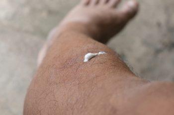 76279653-Jutamas-Raksaphan-Dreamstime-INP pijnstillende crèmes huid