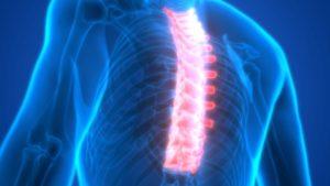 81706791-Magicmine-Dreamstime-INP-Instituut-voor-Neuropathische-Pijn ruggenmergstimulatie