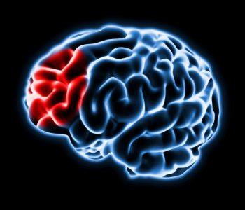 91312307-Milan-Kubička-Dreamstime-INP-Instituut-voor-Neuropathische-Pijn neuropathie ontstekingen hersenen