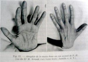 HMSN-type-3-INP-Instituut-voor-Neuropathische-Pijn.jpg