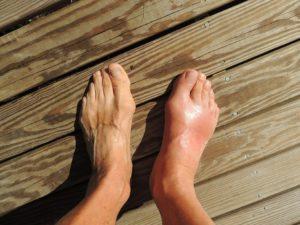 Pixabay-feet-INP-Instituut-voor-Neuropathische-Pijn crps pijnstillende creme