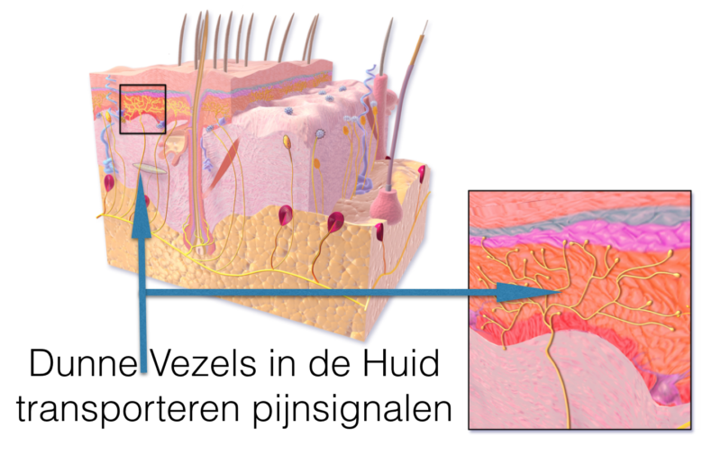 Dunne Vezel Neuropathie DVN