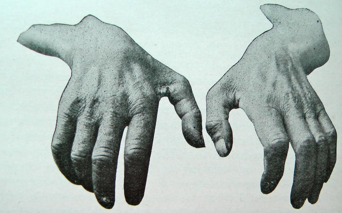 Ulnaris neuropathie, ofwel elleboog neuropathie