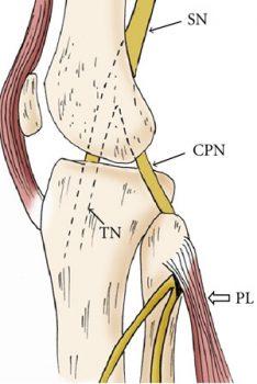 kuitzenuw-pijn-INP