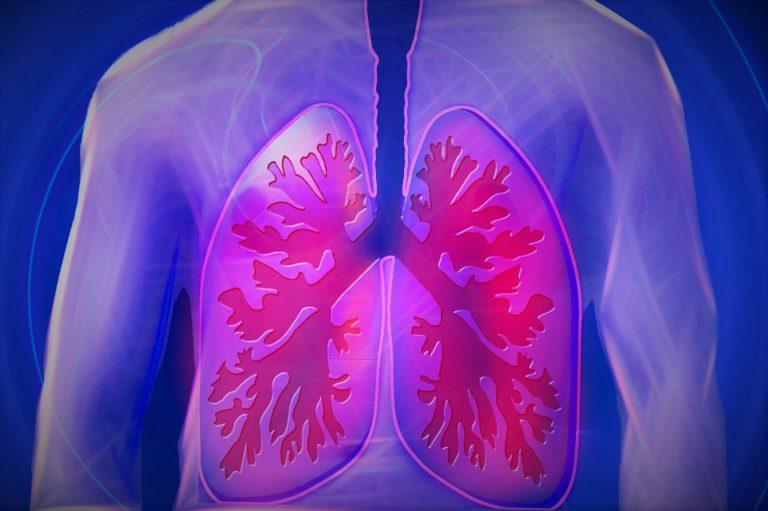 pixabay-944557-INP-Instituut-voor-Neuropathische-Pijn cystic fibrosis