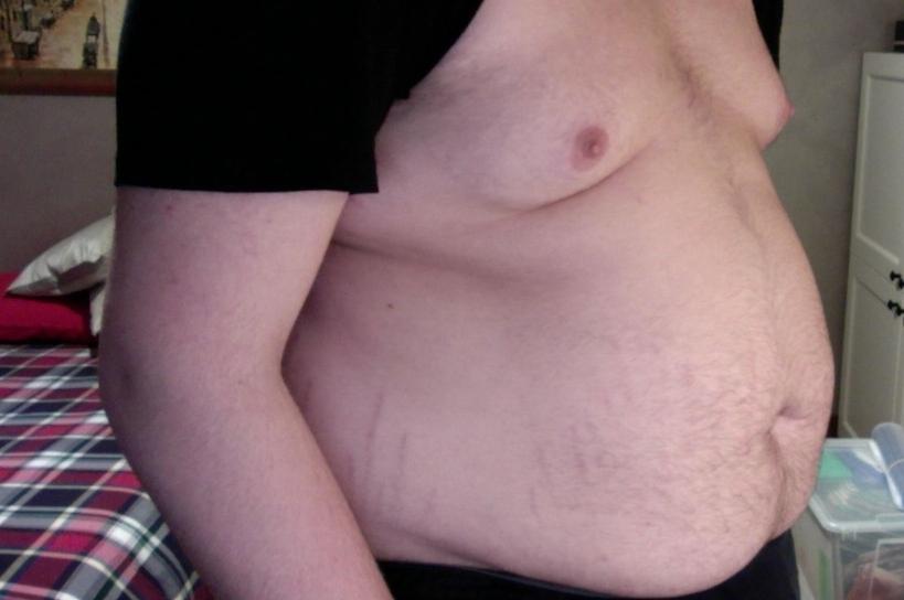 wikimedia-obese-Instituut-voor-Neuropathische-Pijn-INP overgewicht pregabaline